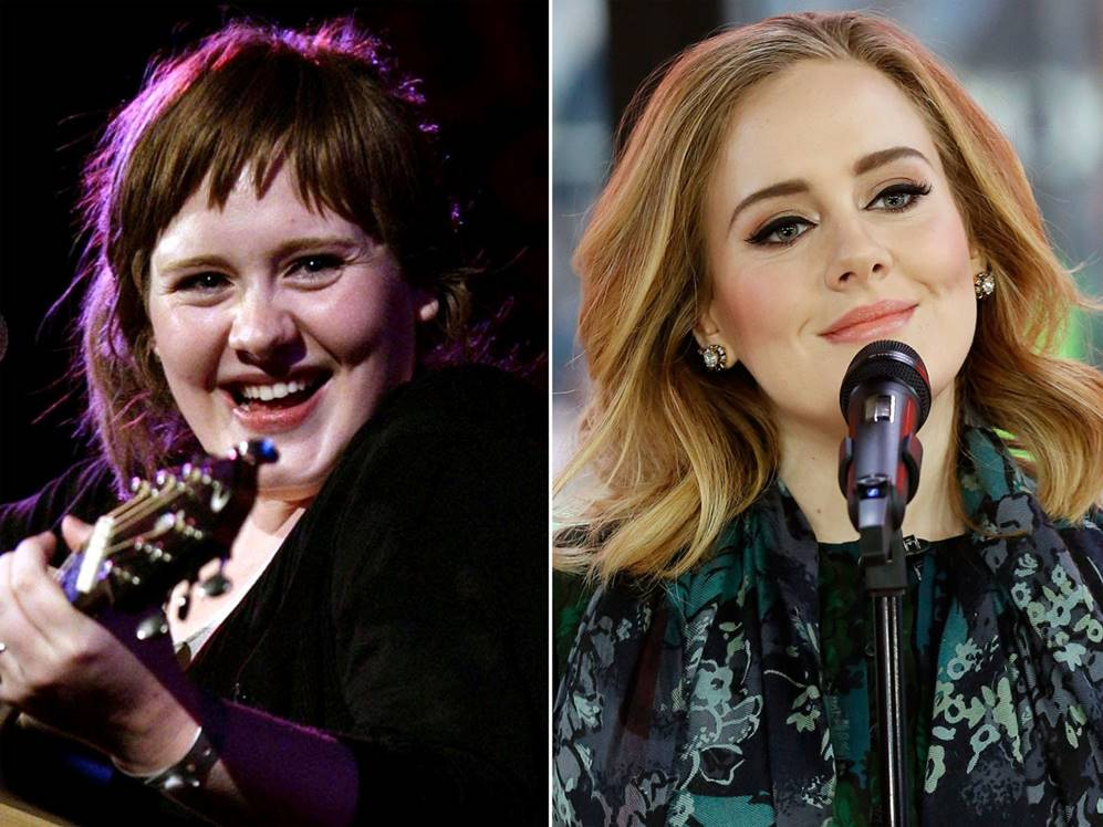 Adele S Before And After Surgery Photos Show Proof Of